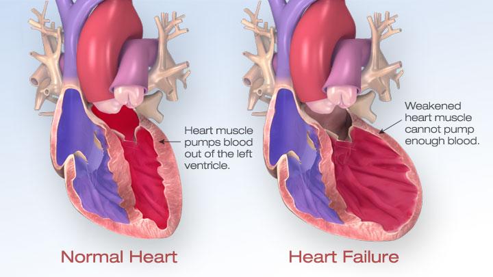 treatment of heart failure – Cardiac Wellness Institute